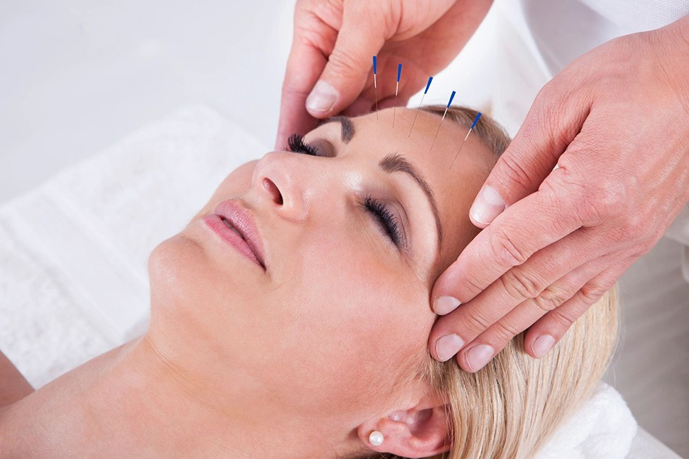 Acupuncture needles on the forehead